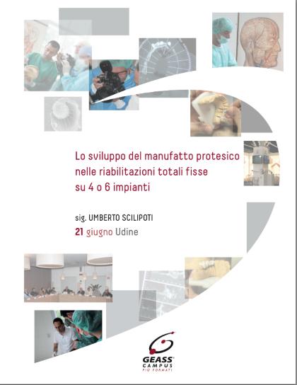 Lo sviluppo del manufatto protesico nelle riabilitazioni totali fisse